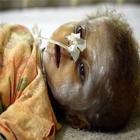 تصویر تلفات کودکان پاکستانی در قحطی ایالت «سند» به ۱۳۸ تن رسید