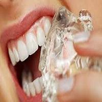 تصویر عادت هایی که برای داشتن دندان های سالم باید ترک کنید